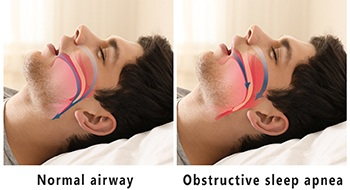 Illustration of man with normal airway and blocked airway
