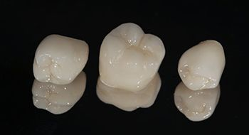 three dental crowns against black background