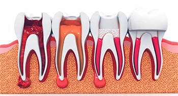 Steps of root canal procedure.