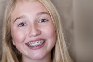 A young girl with braces smiling.