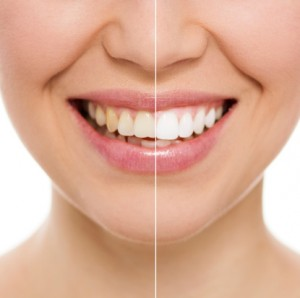The newest teeth whitening treatment to get your smile looking beautiful.