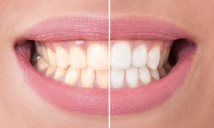 Healthy teeth can get stained say Weatherford dentists, Drs. Deborah Romack and Garrett Mulkey. Dietary changes keep whitened teeth looking bright.
