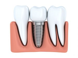 Our highly skilled dentists are your one stop for dental implants in Weatherford.